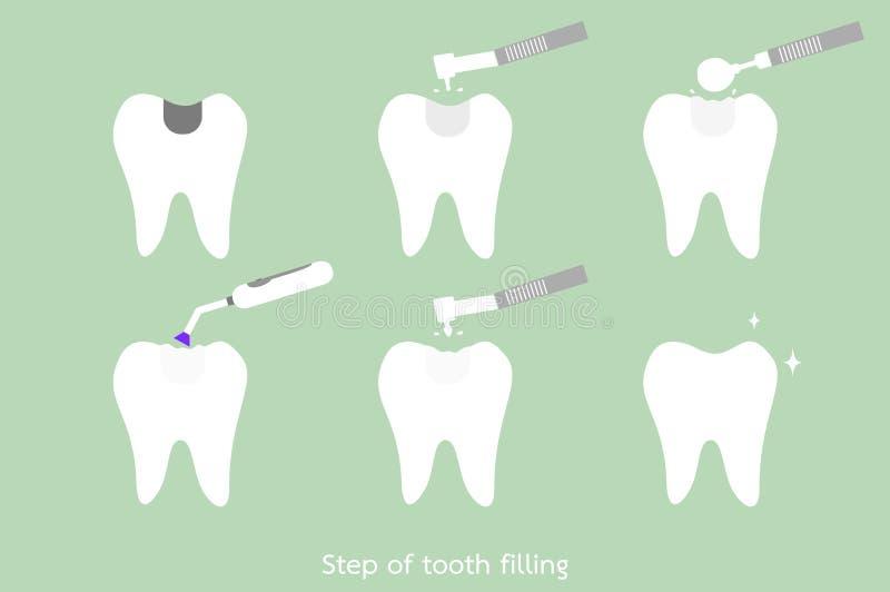 步对牙混合物装填的龋与牙齿工具 向量例证