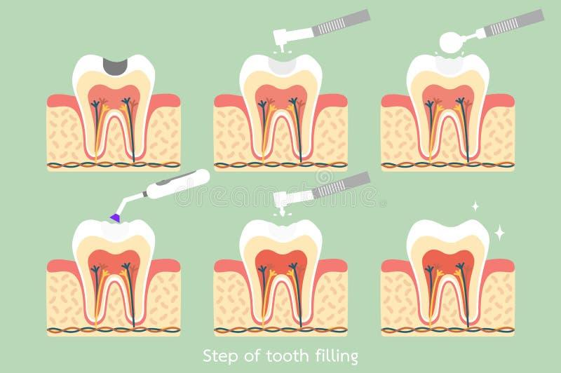 步对牙混合物装填的龋与牙齿工具 库存例证
