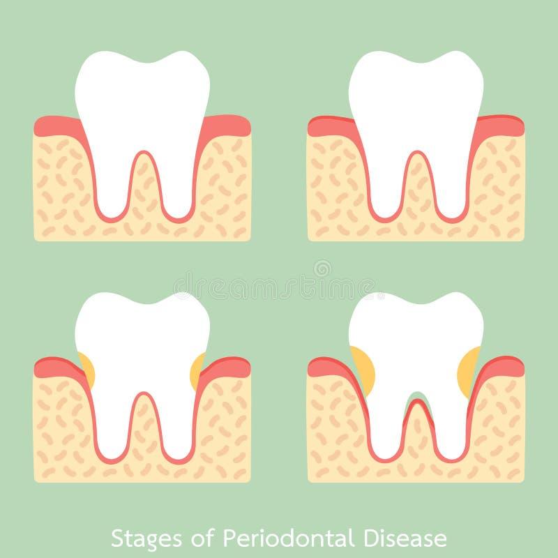 步牙周病/periodontitis/齿龈炎/牙龈炎,牙齿问题 向量例证