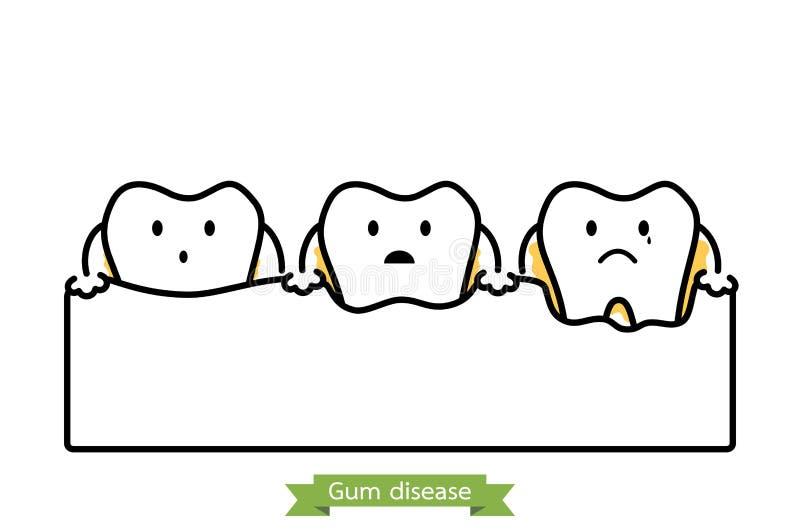 步牙龈炎-动画片传染媒介概述样式 库存例证