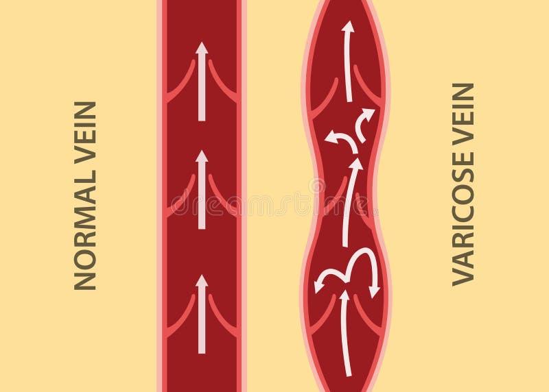比较比较在正常静脉和静脉曲张之间在垂直的对准线 向量例证