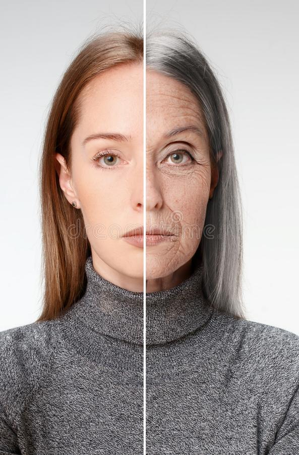比较 美丽的妇女画象有问题和干净的皮肤、老化和青年概念的,秀丽治疗 免版税库存照片