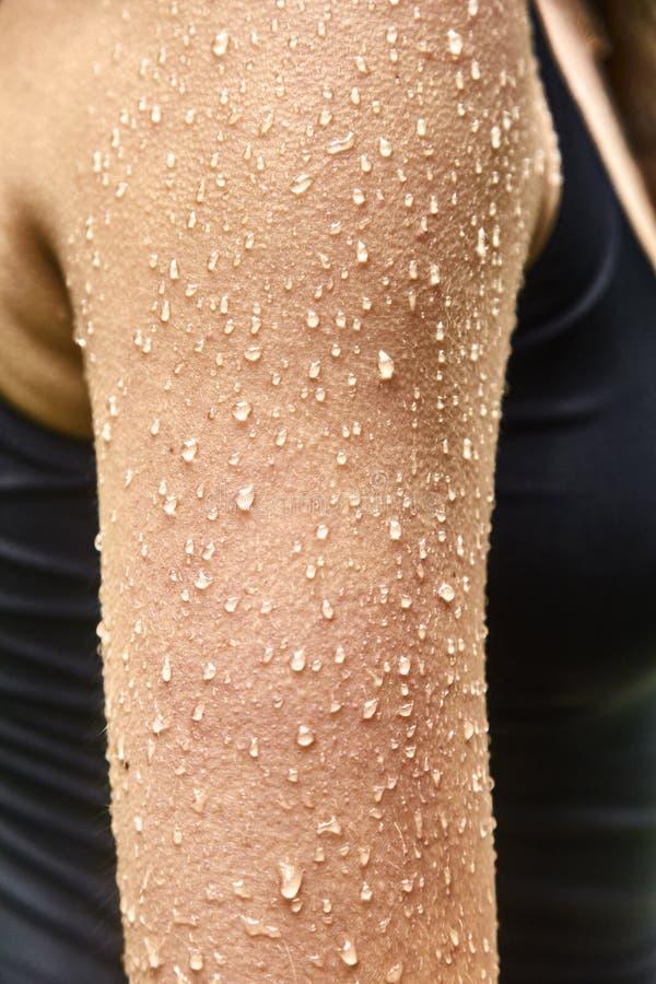 水Goosebumps和滴在女性皮肤的 图库摄影