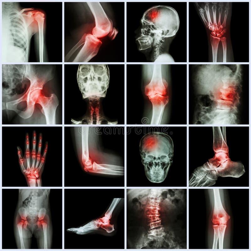 汇集人的联接和关节炎和冲程 库存照片