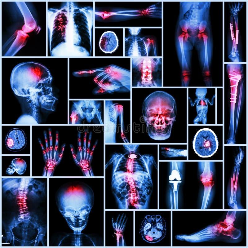 汇集人,矫形操作,多种疾病的X-射线零件 免版税库存图片