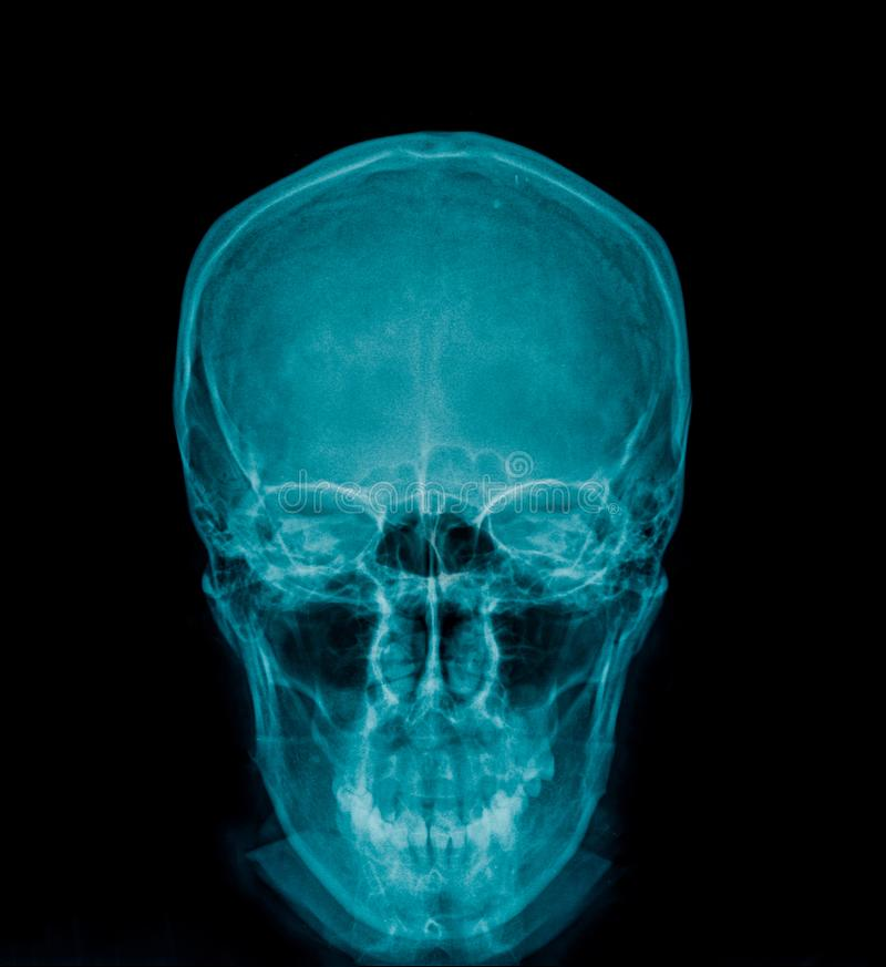汇集头骨X-射线AP 向量例证