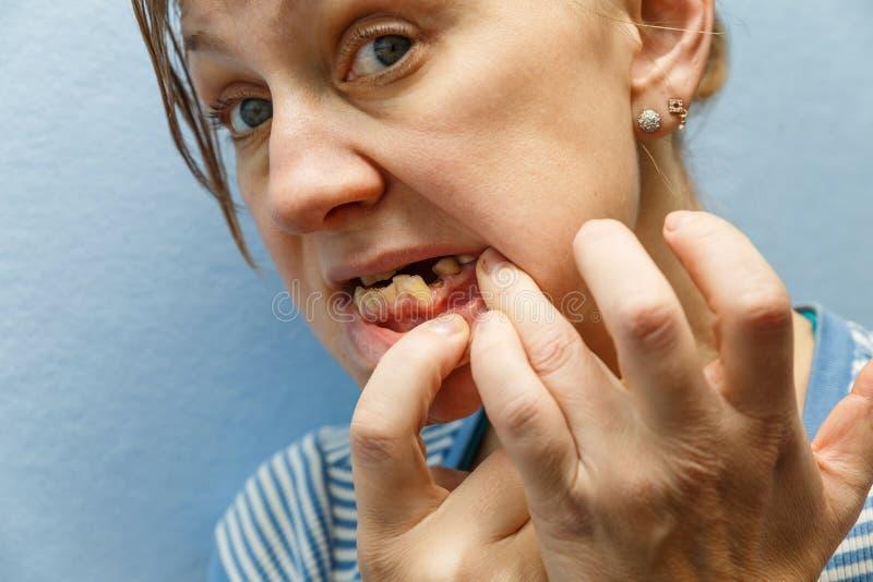 没有被伤的牙的妇女 免版税库存图片