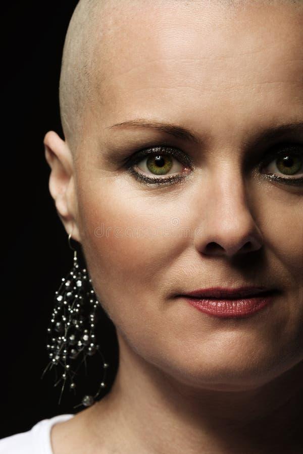 没有头发的美丽的中年妇女癌症患者 库存照片