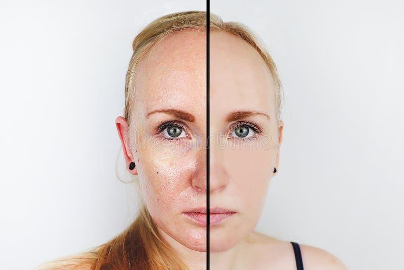 油性皮肤和清楚的皮肤 前后两张照片 一个女孩的画象有问题皮肤的 免版税库存照片