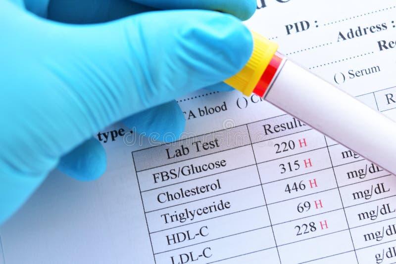 油脂外形和血糖的反常重大结果测试 库存图片