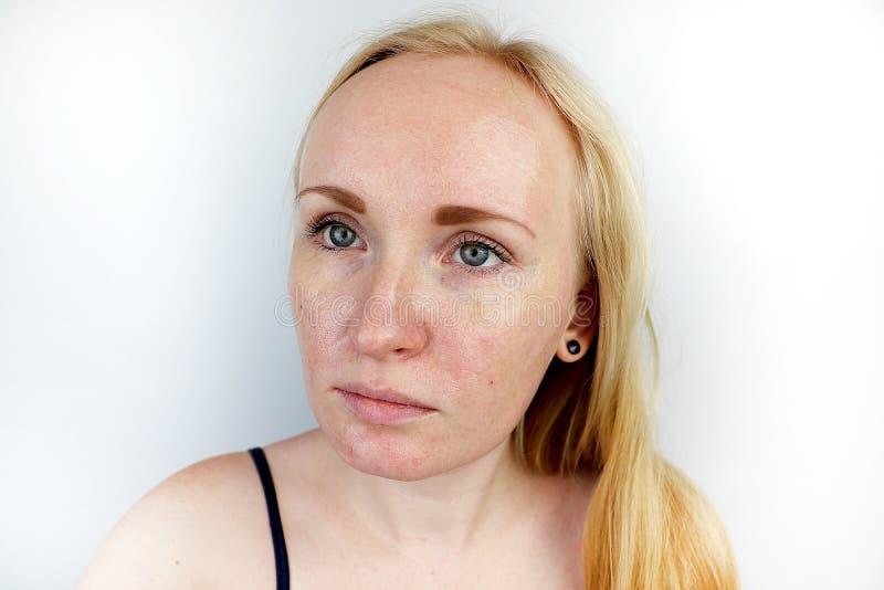 油腻和问题皮肤 一个白肤金发的女孩的画象有粉刺、油性皮肤和染色的 库存图片