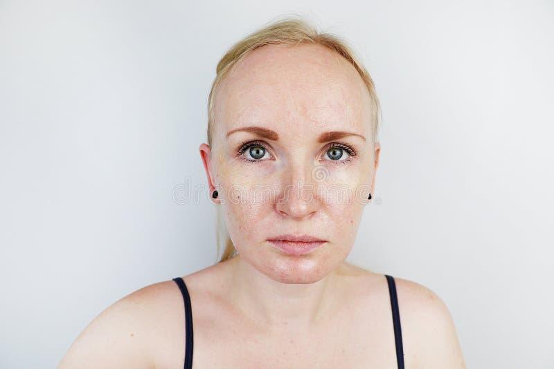 油腻和问题皮肤 一个白肤金发的女孩的画象有粉刺、油性皮肤和染色的 免版税图库摄影