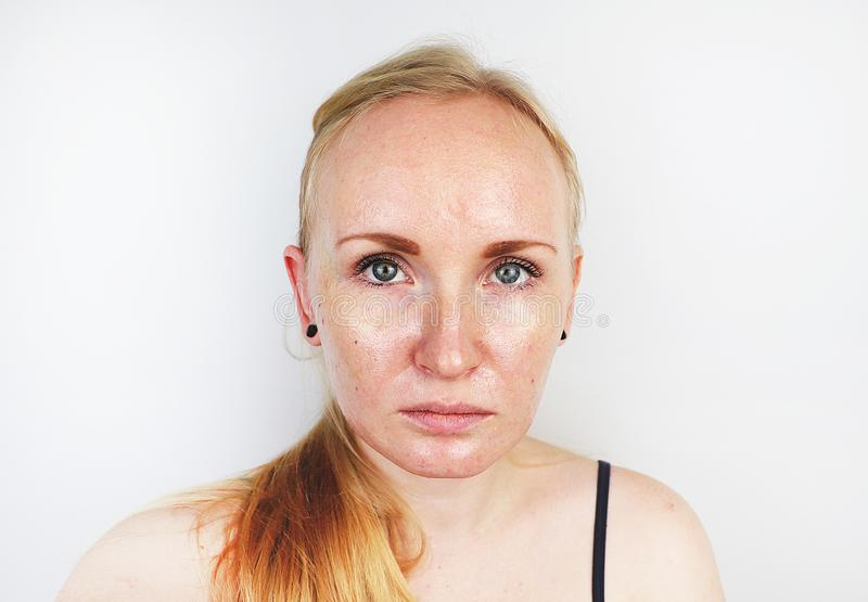 油腻和问题皮肤 一个白肤金发的女孩的画象有粉刺、油性皮肤和染色的 免版税库存照片
