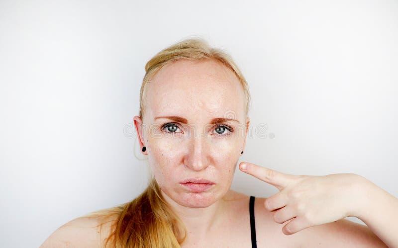 油腻和问题皮肤 一个白肤金发的女孩的画象有粉刺、油性皮肤和染色的 免版税库存图片