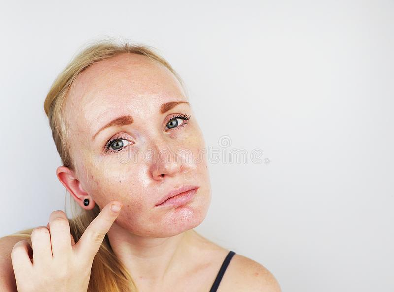 油腻和问题皮肤 一个白肤金发的女孩的画象有粉刺、油性皮肤和染色的 图库摄影
