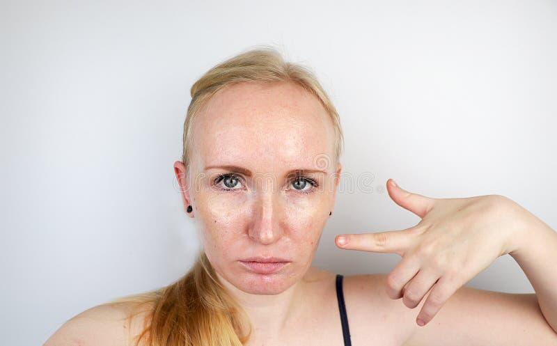 油腻和问题皮肤 一个白肤金发的女孩的画象有粉刺、油性皮肤和染色的 库存照片