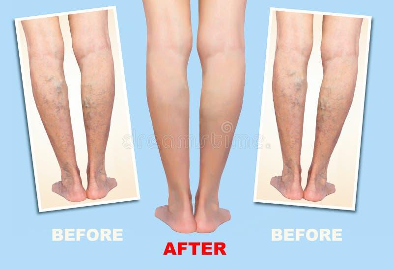 治疗静脉肿前后 在腿的静脉曲张 向量例证