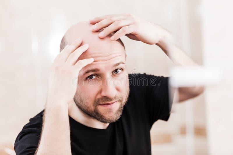 注视着镜子的秃头人顶头光秃和掉头发 免版税库存照片
