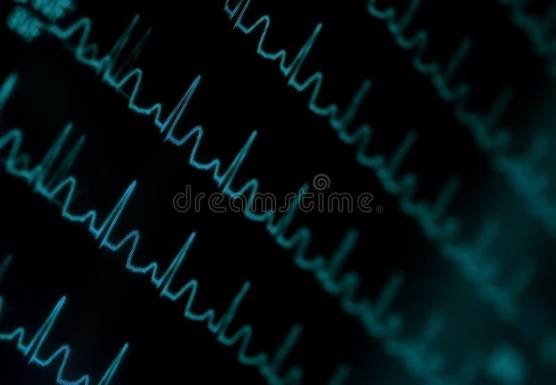 淡光的ECG显示器 库存照片