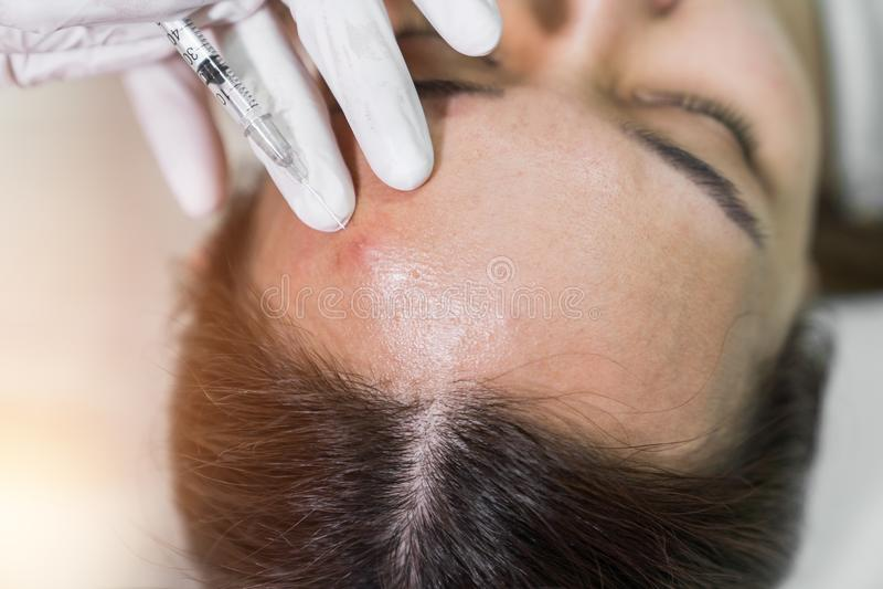 温泉做粉刺治疗的美容院的美容师使用mec 免版税图库摄影