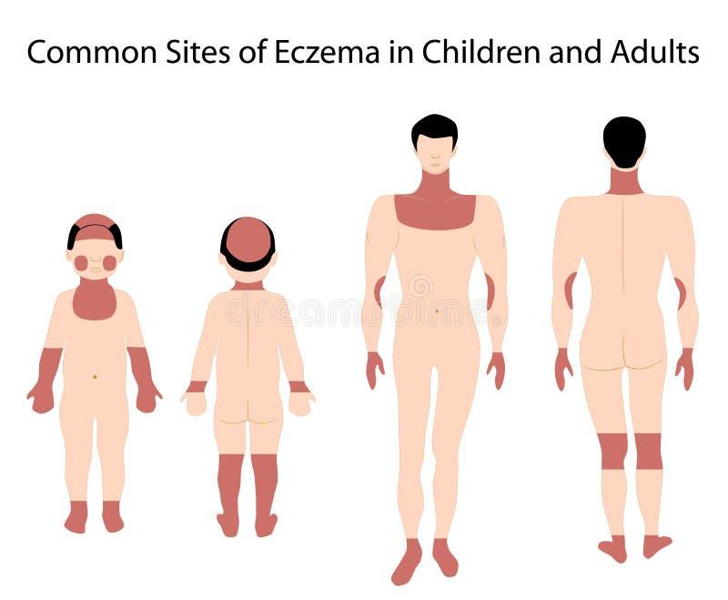 湿疹站点 向量例证