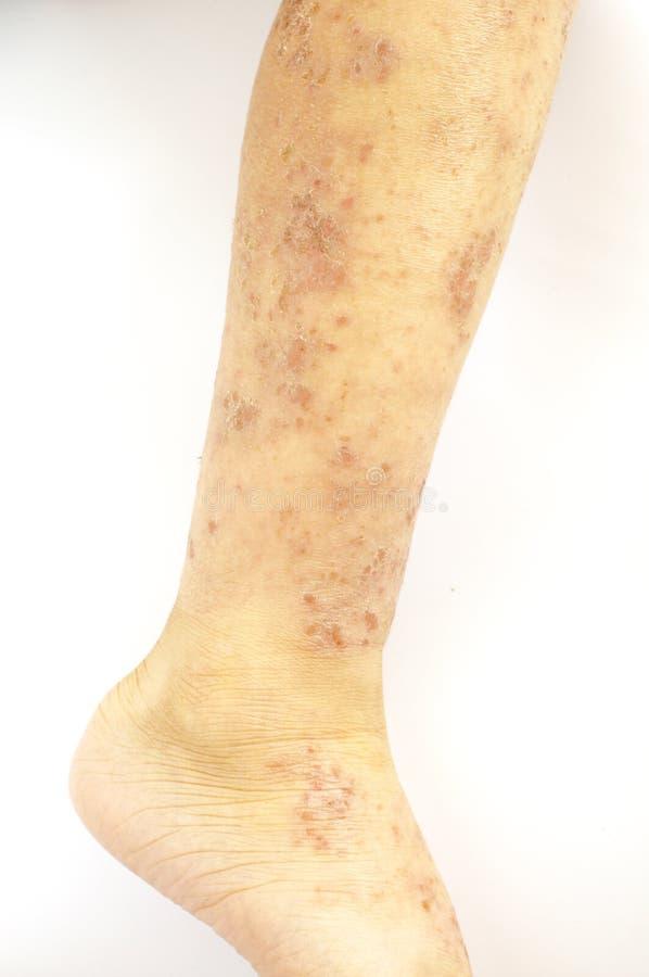 疹样乳癌_在孩子的腿的皮肤的湿疹轻率创伤