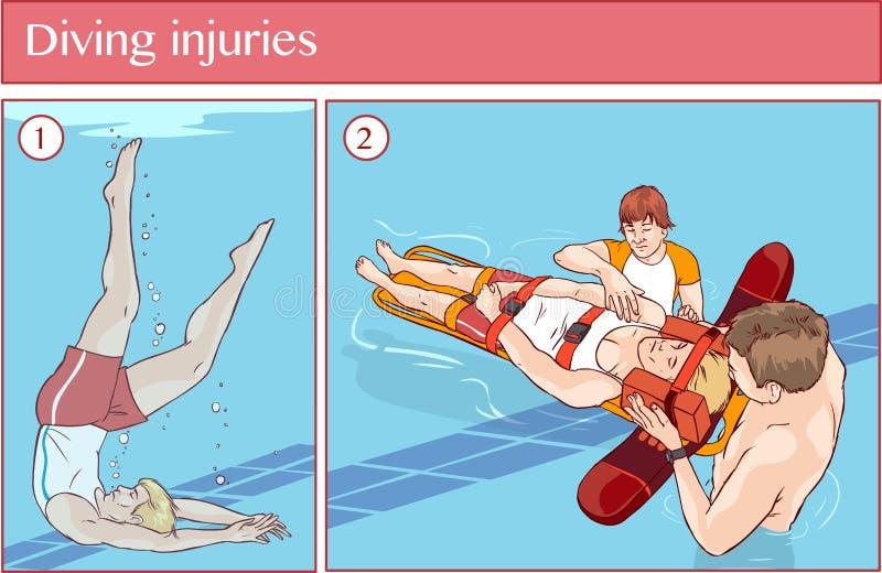 潜水伤害的传染媒介例证 向量例证