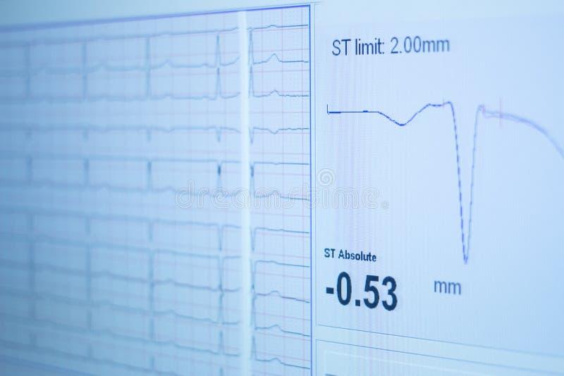 炫耀表现健身耐力评估测试气体analysi 库存照片