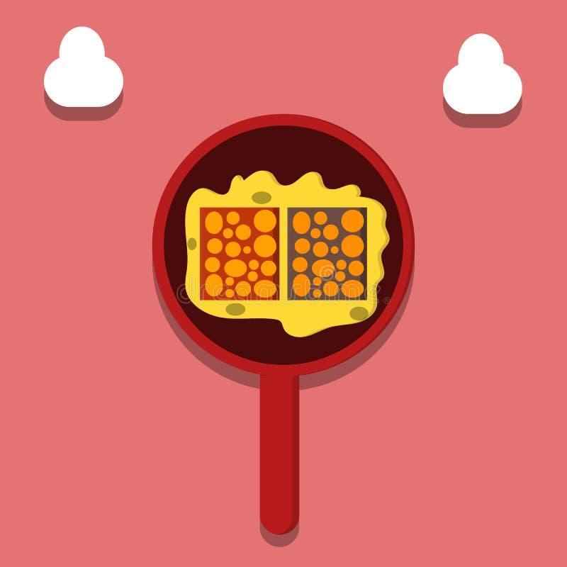 烹调坦佩食物,从大豆豆的食物,印度尼西亚llustration -传染媒介 皇族释放例证