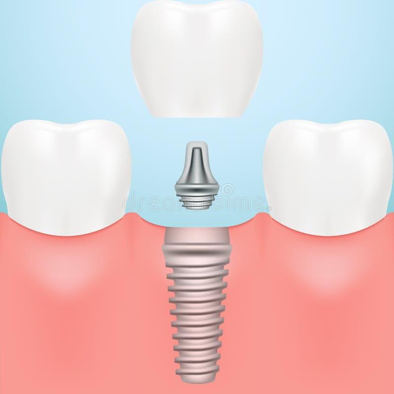 牙人的植入管 掠过的概念牙齿孩子牙向量 在背景或假牙隔绝的人的牙 也corel凹道例证向量 库存例证