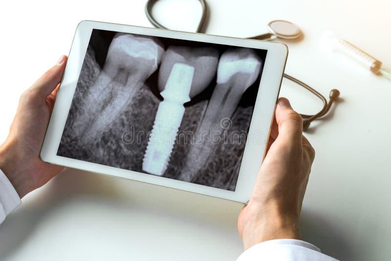 牙医有牙齿枢轴的观看的一个牙齿X-射线牙在数字式片剂 放射学概念 图库摄影