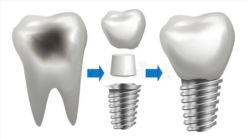 牙插入物传染媒介 有龋的牙 健康牙植入管 牙齿诊所口腔医学飞行物 被隔绝的现实 皇族释放例证