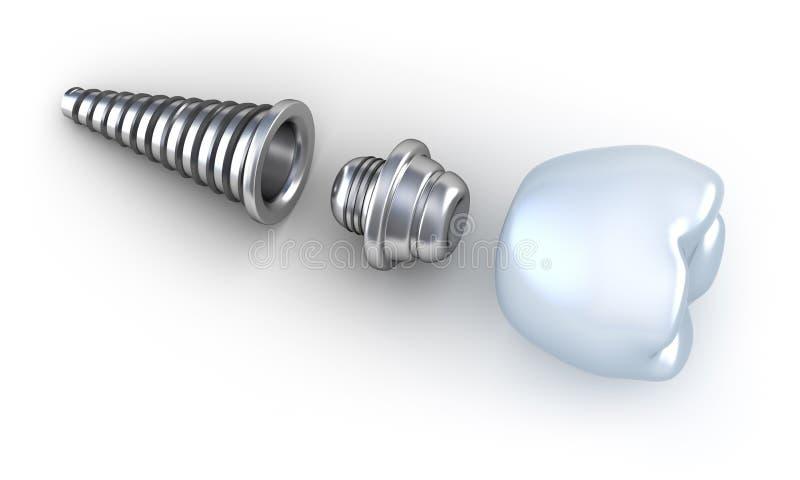 牙插入物位于的表面 库存例证