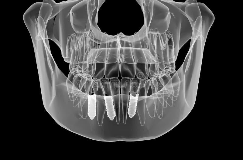 牙插入物和牙 库存例证