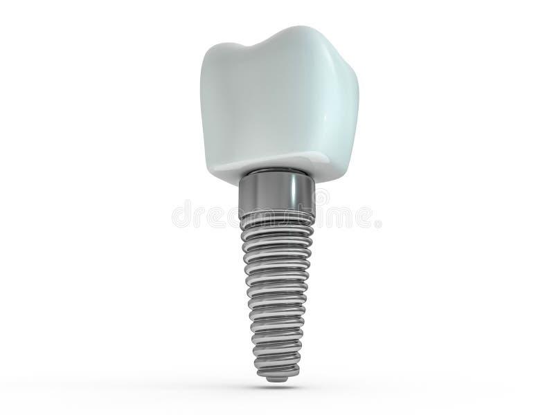 牙插入物牙医,牙布局,塑料,人,牙,治疗 3d 向量例证