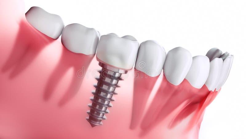 牙插入物特写镜头在下颌的 皇族释放例证
