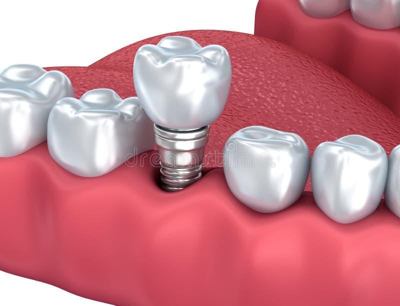牙插入物特写镜头视图 向量例证
