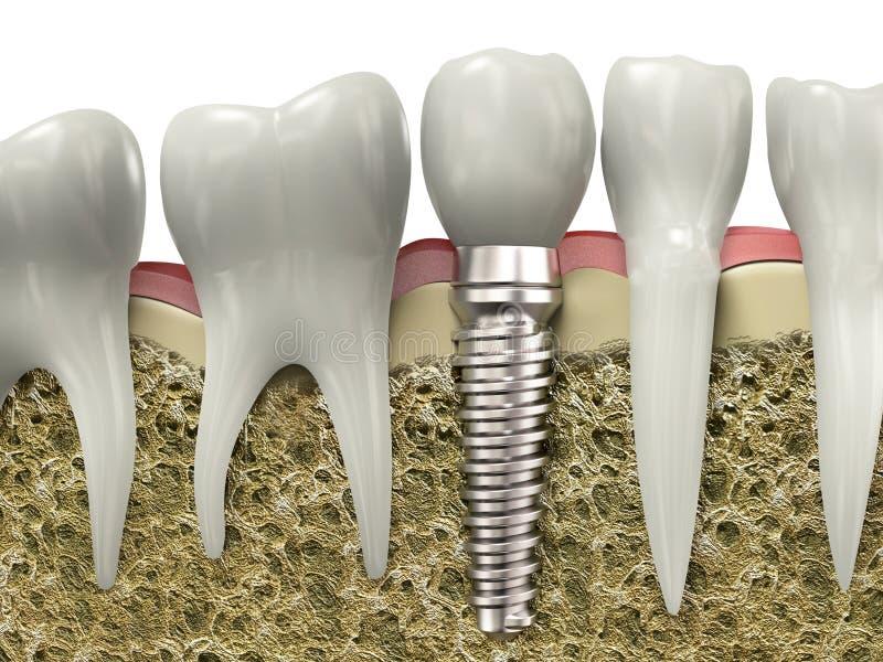 牙插入物 库存例证
