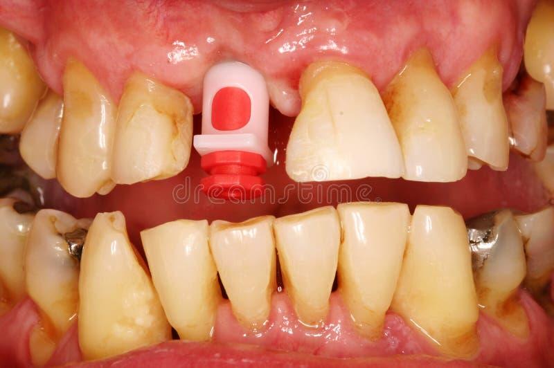 牙插入物 库存图片