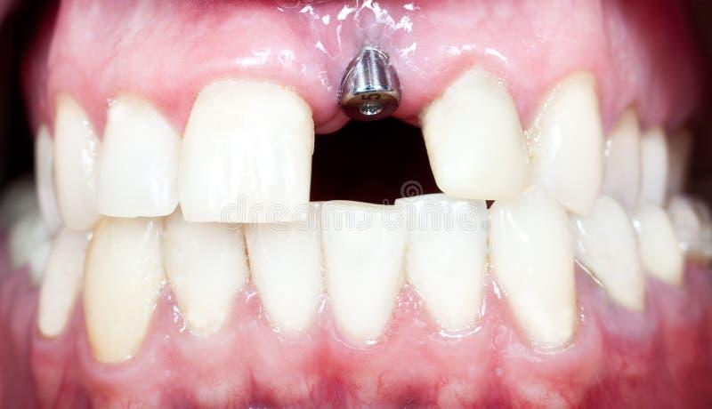 牙插入物 免版税库存照片