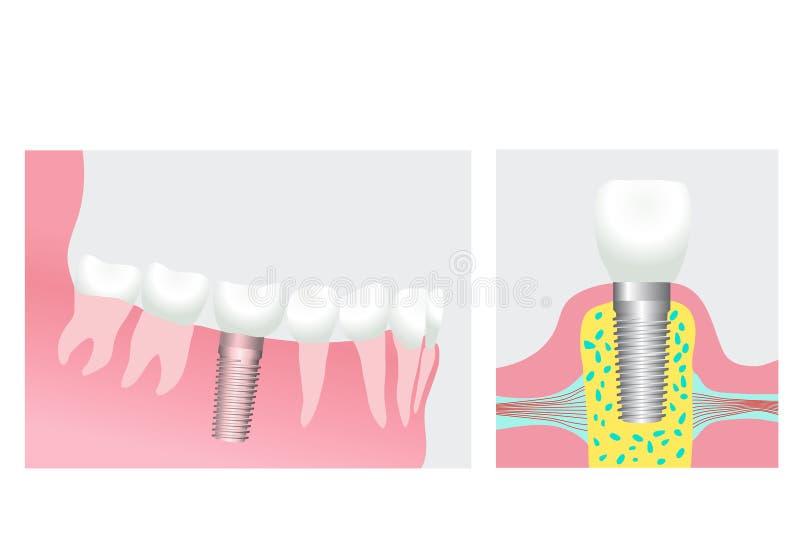 牙插入物 向量例证