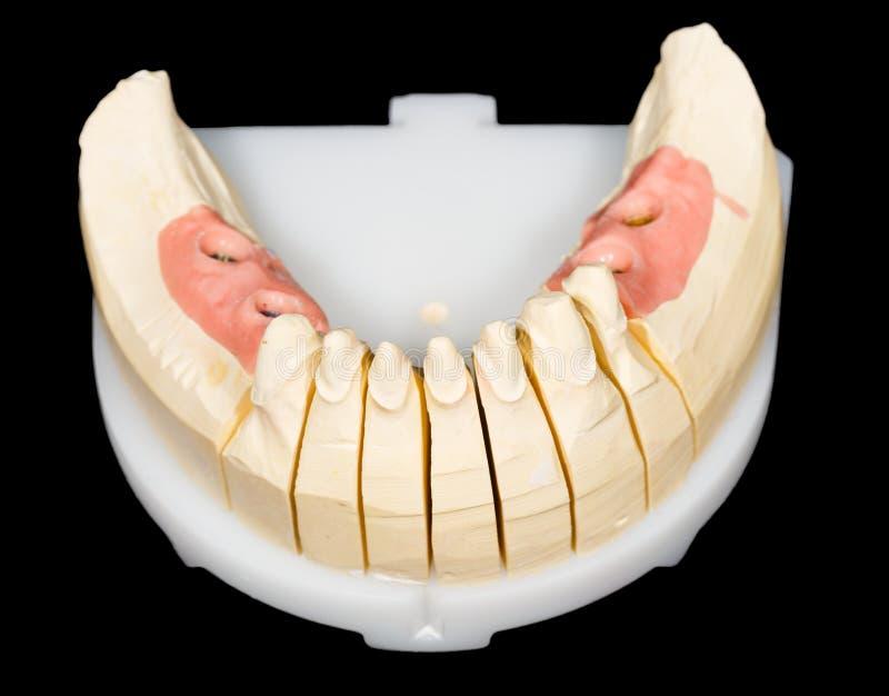 牙树桩和植入管 库存图片