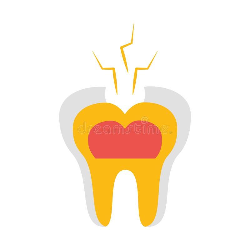 牙残破的牙齿保护 皇族释放例证