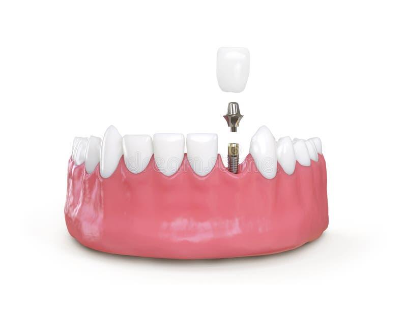 牙牙插入物模型3d例证 向量例证