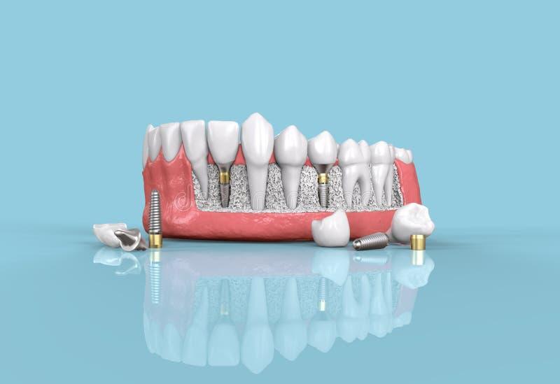 牙牙插入物模型3d例证 皇族释放例证