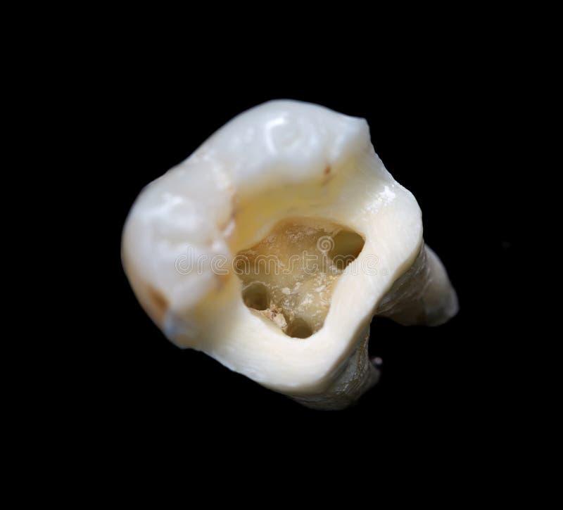 牙的解剖结构 免版税库存照片