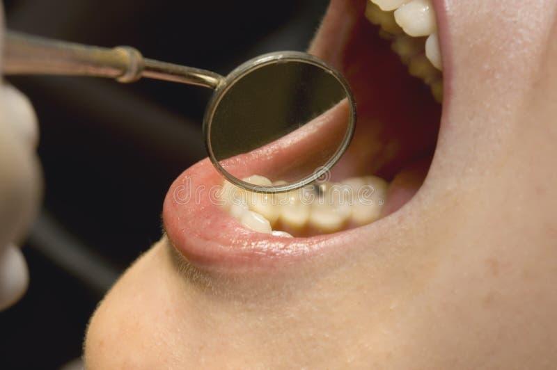 牙科医生开放镜子的嘴 免版税库存图片