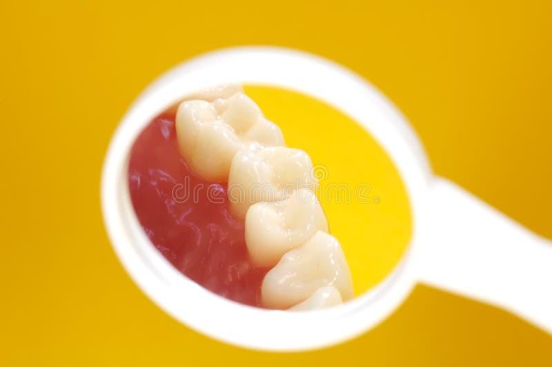 牙科医生镜子 免版税库存图片