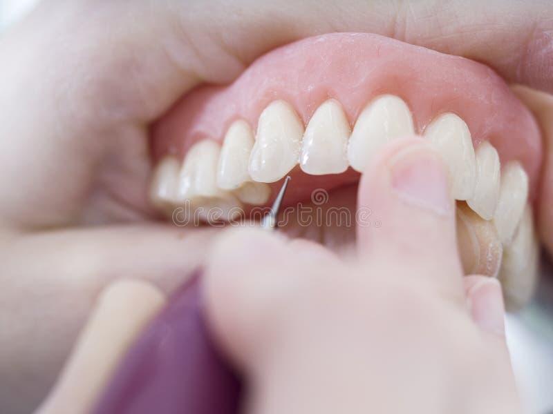 牙科技师与在塑象模子的瓷牙一起使用 库存图片