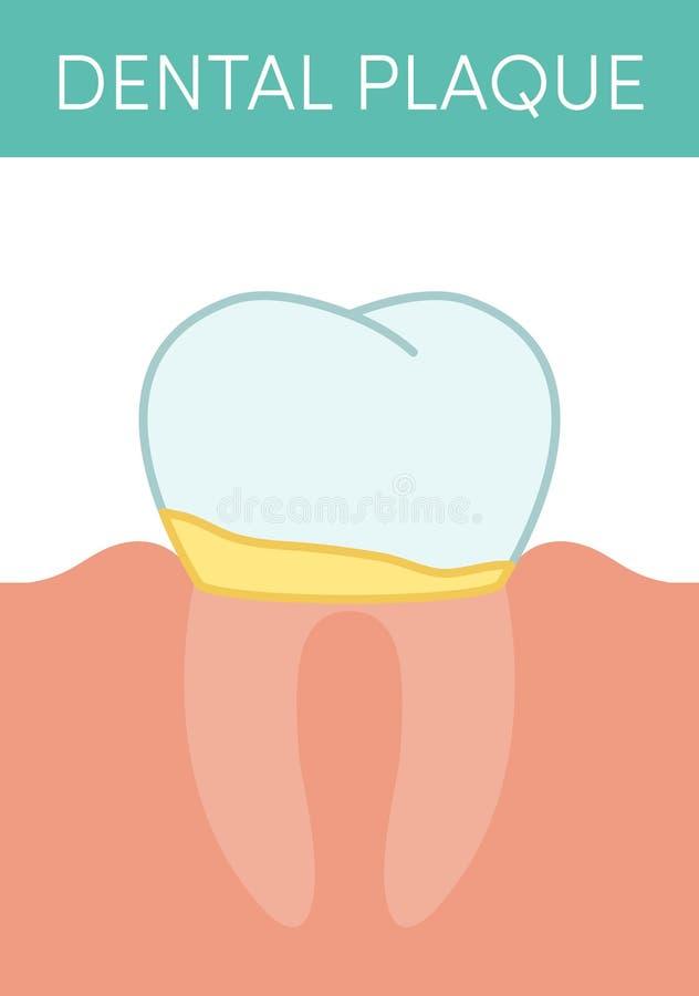牙菌斑概念 库存例证